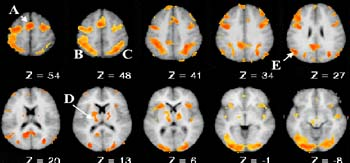 Sophisticated brain imaging reveals that several brain regions can become overactivated when people with Tourette Syndrome perform tasks related to memory.