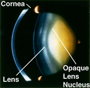 Oxygen near lens linked to cataracts in eye surgery patients | The ...