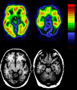 PET images are on top. MRI images showing matching anatomy are on bottom. Areas of red and yellow show increased uptake of the altanserin tracer due to binding to the serotonin receptors.
