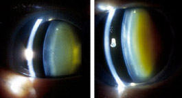 Left: This eye of a 72-year-old woman shows normal yellowing of the lens due to age-related nuclear sclerotic cataract. Right: The same woman's other eye shows opacification due to more severe nuclear sclerotic cataract two years after vitrectomy.