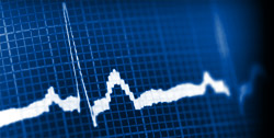 Abnormal heart rate variability is one of the reasons why depression has a negative effect on heart attack patient outcomes.