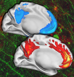 Brain regions active during default mental  tates in young adults reveal remarkable correlation with those regions showing Alzheimer's disease pathology.