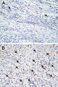 At 28 days after rotator cuff repair, the images indicate increased cell proliferation in rats given a salt solution (B) as compared to rats given nicotine (A). Arrows point to new cells that stain brown because they contain a substance called  proliferating cell nuclear antigen (PCNA).