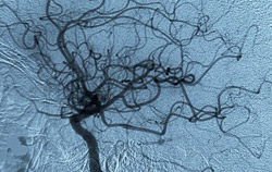 An angiogram, or X-ray image of blood vessels