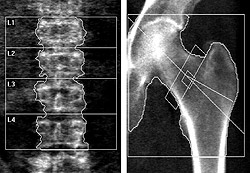 DXA scans of a male patient with osteoporosis