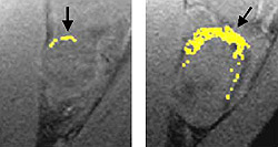 A tumor treated with fumagillin nanoparticles (left) is smaller than an untreated tumor (right.) Nanoparticles containing an image enhancing metal (yellow) show that the treated tumor has much less blood vessel growth than the untreated tumor.