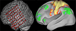 Scientists used direct monitoring of the brain via a temporary implanted grid of electrodes (left) and functional magnetic resonance imaging (right) to detect a low-frequency brain signal that doesn't stop, even in sleep, and may help enable many cognitive functions.