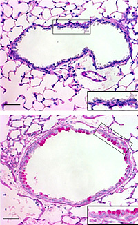 Top: cross section of an airway in the lung of a normal mouse. Bottom: cross section of an airway of a mouse with high TSLP: visible are large goblet cells (dark pink), the hallmark of asthma.
