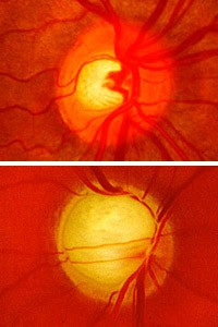 WASHINGTON UNIVERSITY SCHOOL OF MEDICINE/The changing appearance of the optic nerve at the rear of the eye displays an increase in glaucoma risk, as a healthy optic nerve head (top photo) begins to show signs of damage (bottom).