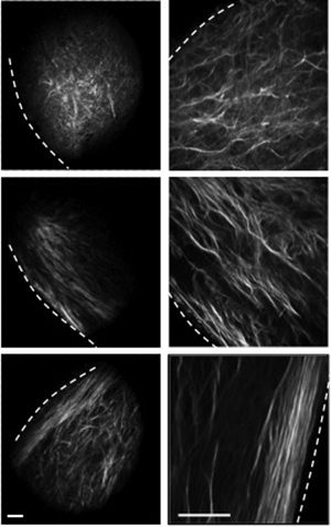 Breast collagen alignment