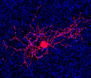 Using a labeling agent, researchers at Washington University School of Medicine in St. Louis have been able to isolate and visualize a specific type of retinal cell (in red) in the eye that's key to detecting motion. (Photo: KERSCHENSTEINER LAB-WASHINGTON UNIVERSITY