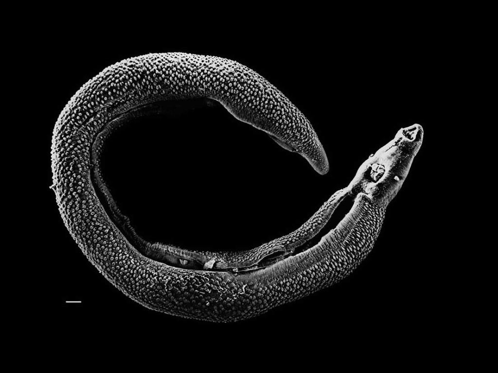 schistosoma-tb