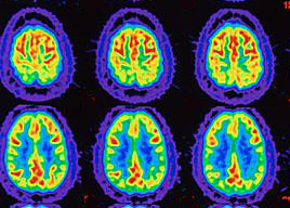 PET scans of Alzimer's and normal brains