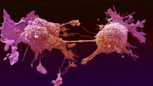 Lung cancer cells dividing.