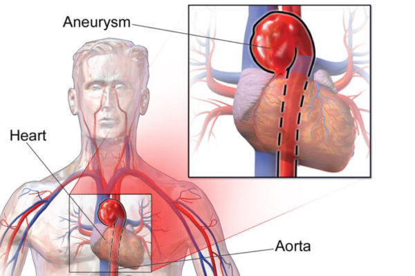 In young people, aortic aneurysms are most often caused by an inherited condition, such as Marfan syndrome. Standard genetic tests often pinpoint the reason for inherited aortic disease, but some cases remain medical mysteries. A new study adds lysyl oxidase to the standard list of genes that should be tested when a young person shows an enlarged aorta. Lysyl oxidase helps maintain structural integrity of blood vessels. (Image: Bruce Blaus)