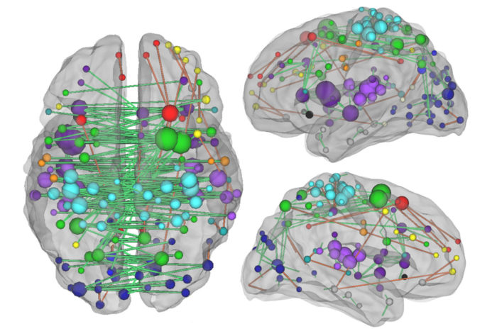 Understanding the network of connections between brain regions — as depicted above — and how they are changed by a stroke, is crucial to understanding how stroke patients heal, according to new research from Washington University School of Medicine in St. Louis. (Image: Joshua Siegel)