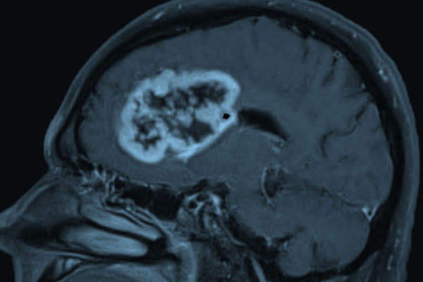 Glioblastoma, shown above, is the most common and deadly form of brain cancer in adults. New research at Washington University School of Medicine in St. Louis shows that glioblastoma patients with a protein called oncostatin M receptor on their tumors face a particularly poor prognosis, suggesting that treatments that target the protein could improve survival. (Image: Albert Kim)