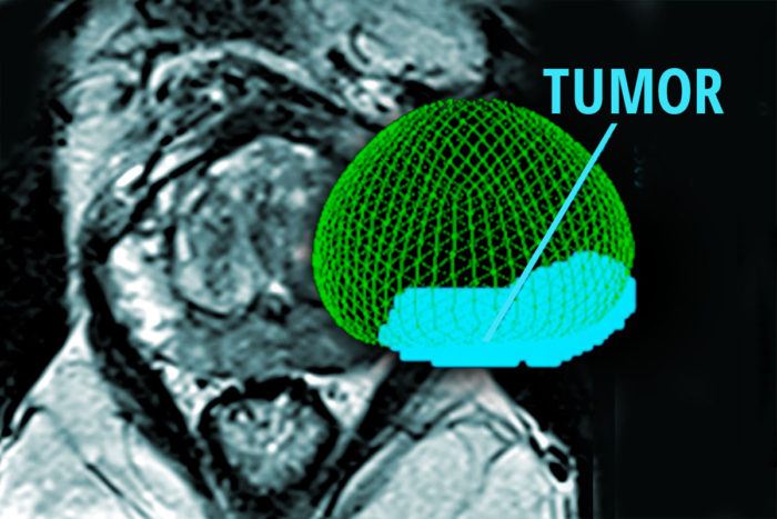Studying prostate tumors, researchers have identified a marker of aggressive prostate cancer. The findings could guide the design of future clinical tests to help doctors determine whether a patient has slow-growing or aggressive cancer. Shown is a scan of a patient with prostate cancer and (in color) a 3-D rendering of the prostate and tumor. (Image: Kathryn Fowler, Eric Young/School of Medicine)