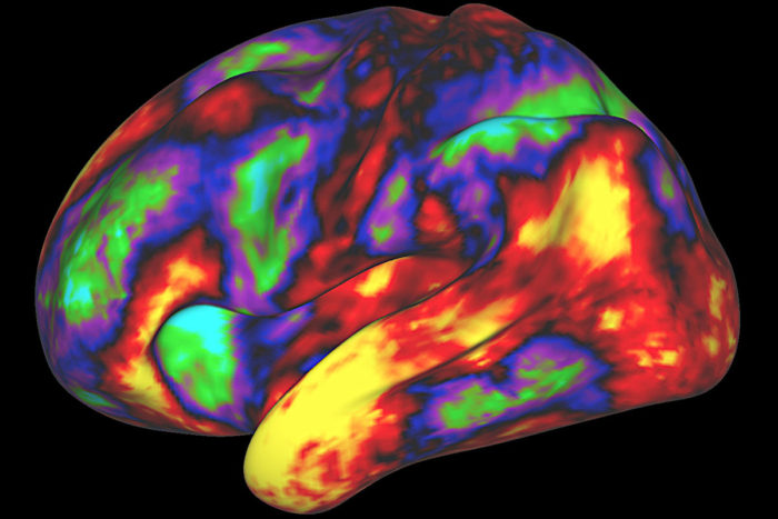 multicolored brain image