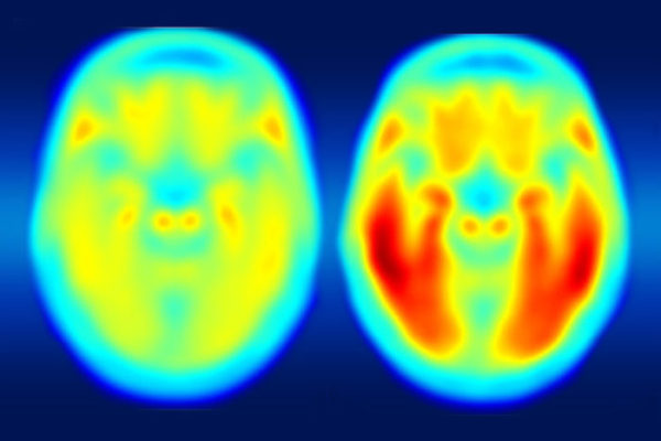 Scientists at Washington University are collaborating with the pharmaceutical companies AbbVie, Biogen and Eli Lilly & Co. to investigate the buildup and clearance of tau protein in the brains of patients with Alzheimer's disease. The PET image on the left shows the average tau accumulation in the brains of cognitively normal people, averaged over many individuals. The image on the right shows the average amount of tau buildup in the brains of multiple people with mild Alzheimer's symptoms. (Image: Matthew R. Brier)