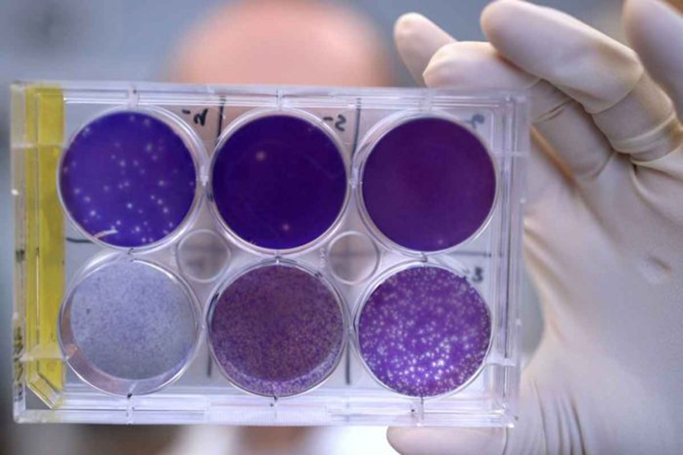 A researcher holds a tray of Zika virus growing in cells at Washington University School of Medicine in St. Louis. No treatments exist to block Zika virus in a pregnant woman from infecting her fetus and potentially causing severe birth defects. But now, researchers report that they have identified a human antibody that prevents — in pregnant mice — the fetus from becoming infected and damage to the placenta. The antibody also protects adult mice from Zika disease. (Photo: Huy Mach/Washington University School of Medicine)