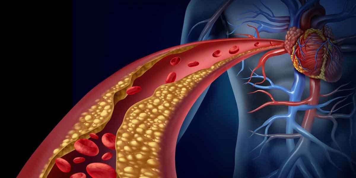 heart and artery graphic