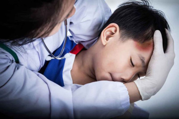 New guidance developed for children hospitalized with mild head trauma