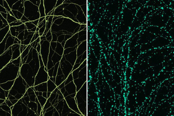 Surprising culprit in nerve cell damage identified