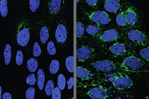 Human placental cells (blue) infected with Zika virus (green)