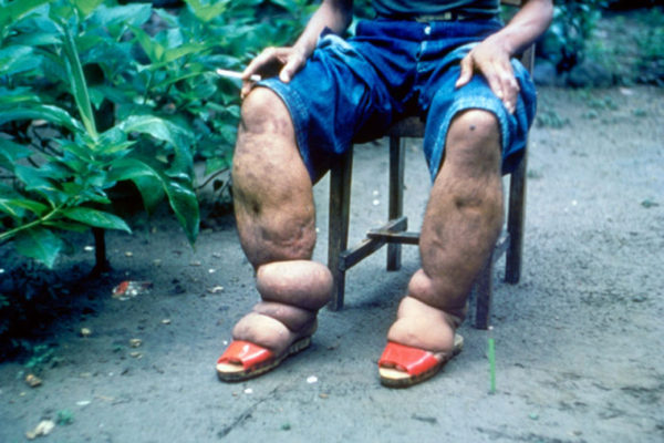 Washington University research spurs new WHO guidelines for disabling tropical disease
