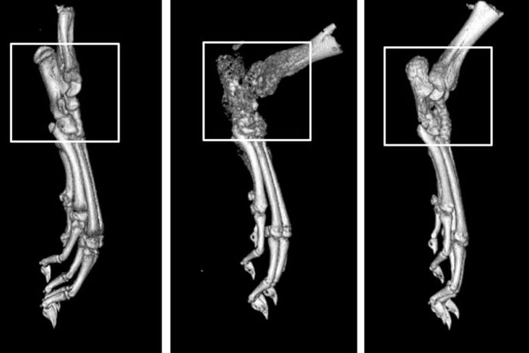 CT bone scans