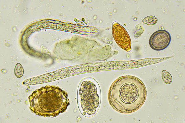 parasitic worms and eggs
