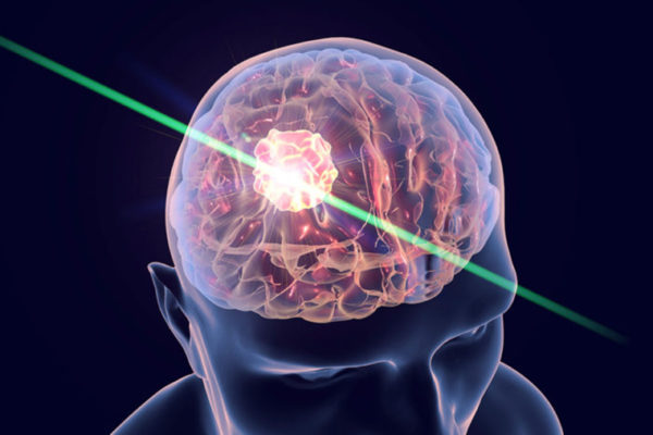 Lasers help fight deadly brain tumors