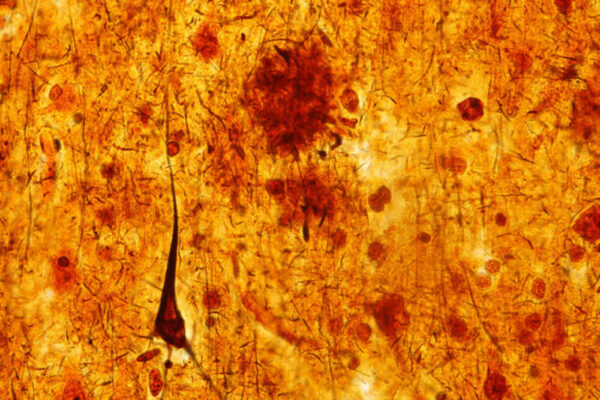 Sleep deprivation accelerates Alzheimer's brain damage