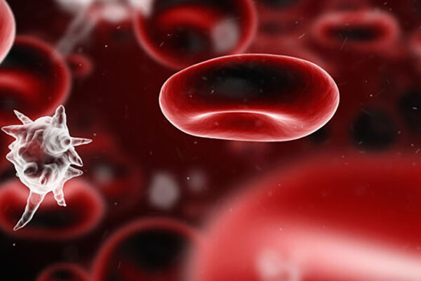 Genes linked to death from sepsis ID'd inmice
