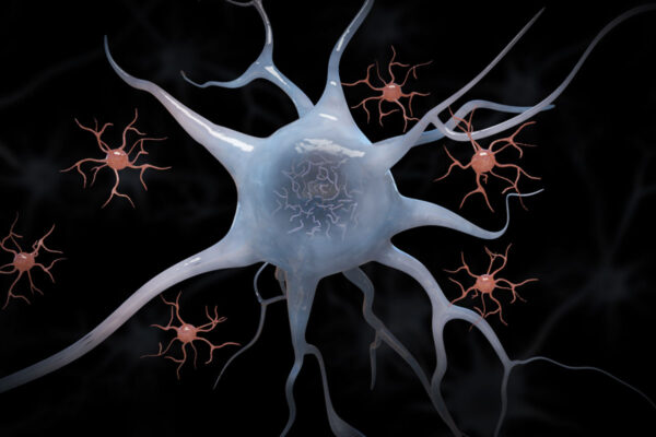 Targeting immune cells may be potential therapy for Alzheimer's