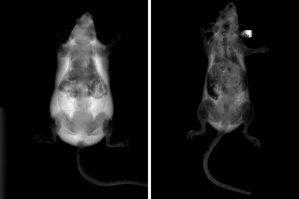 Obesity prevented in mice treated with gene-disabling nanoparticles