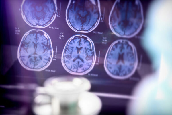 Racial differences in Alzheimer's research focus of $15 million grant