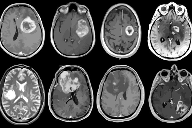 Aggressive brain tumor mapped in genetic detail