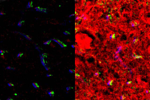 FUSIN promising in therapeutic agent delivery to brain tumor