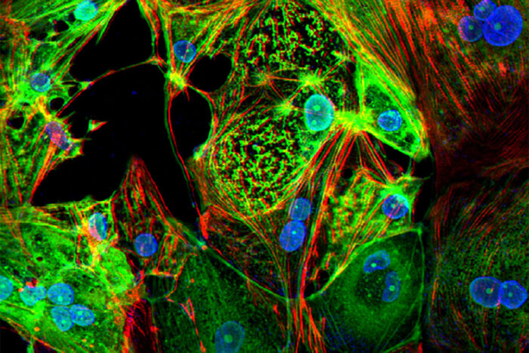 COVID-19 can kill heart muscle cells