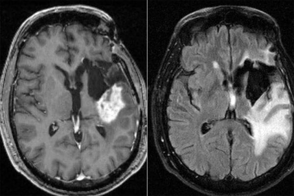 Chemo for glioblastoma may work better in morning than evening