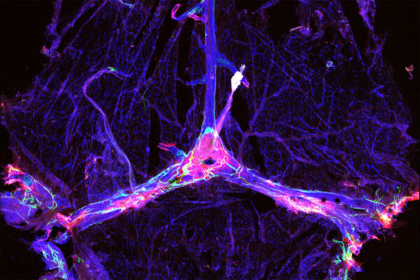 Draining brain's debris enhances Alzheimer's therapies inmice