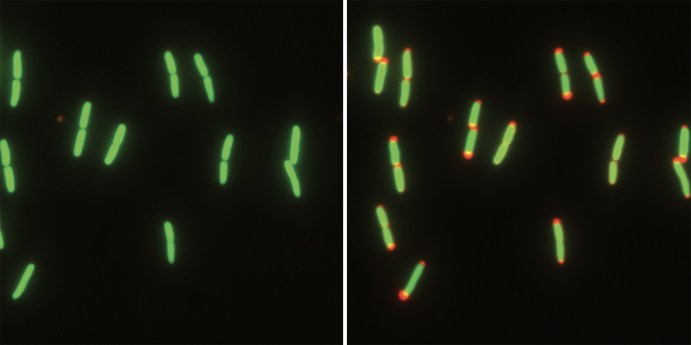 oblong cells at left; oblong cells with red tips at right