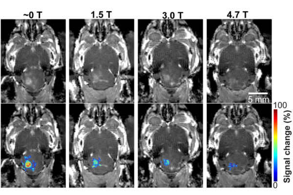 MRI's magnetic field affects focused ultrasound technology