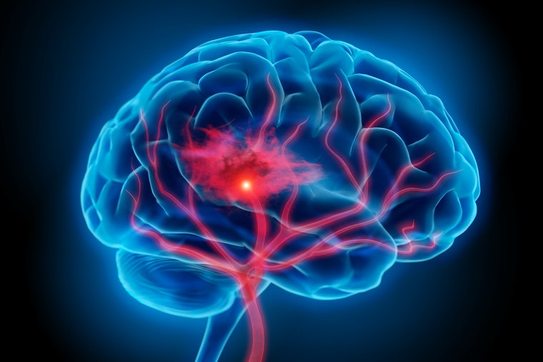 Illustration of a brain with a stroke