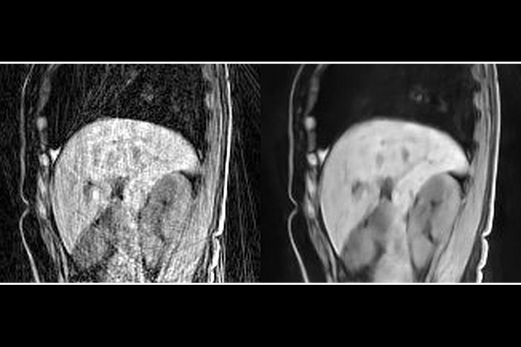 New method boosts MRI results without new data