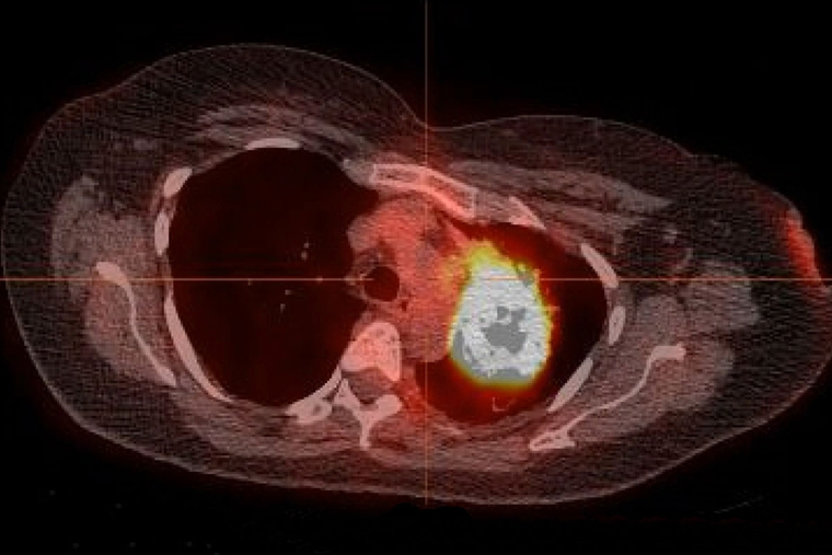 Treatment options for never-smokers' lung cancer