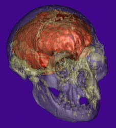 Right frontal view of transparent skull with