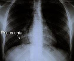 Chest X-ray Lungs Pneumonia